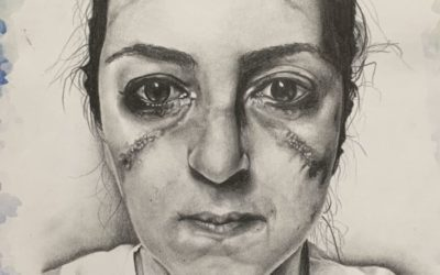 Drawing of a nurse sporting the scars of mask and goggles